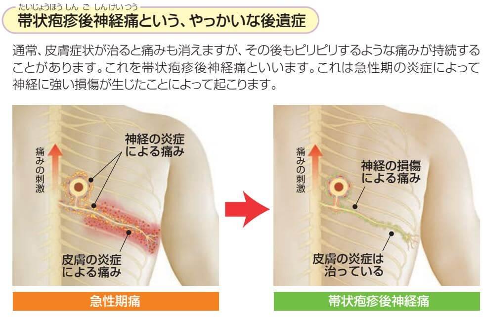 帯状後神経痛
