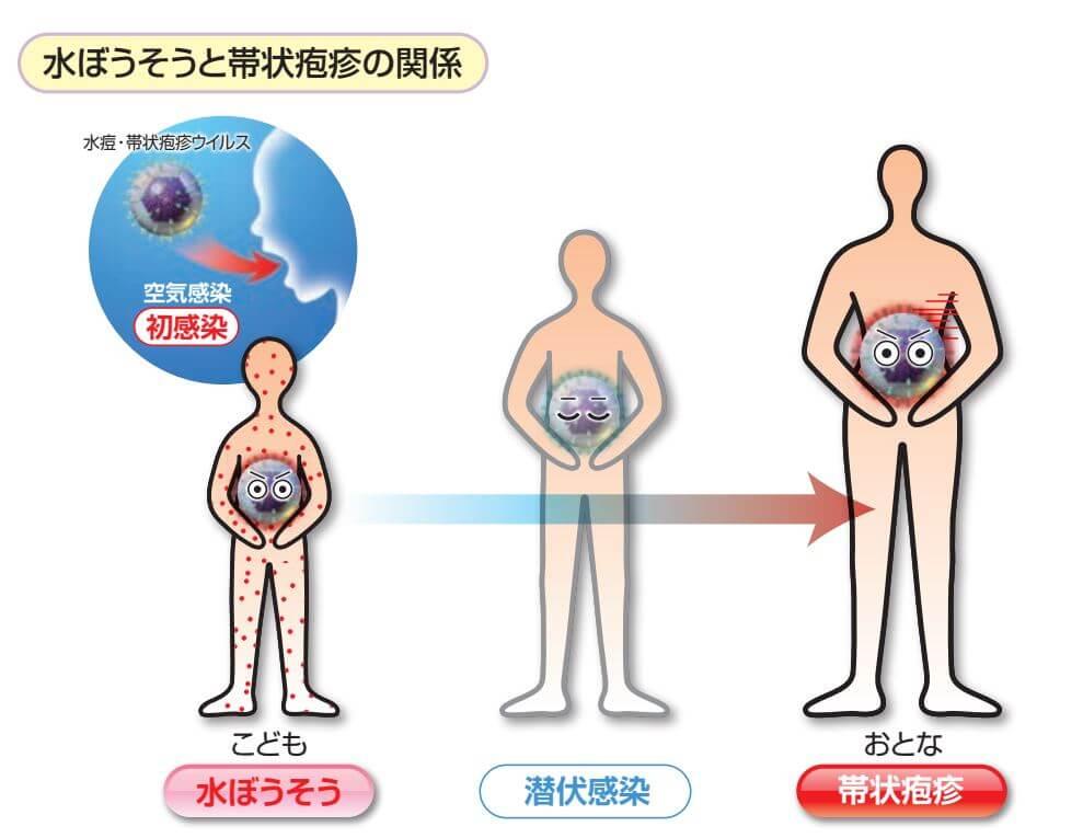 水疱瘡と帯状疱疹